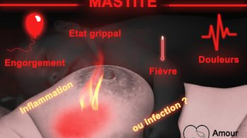 mastite allaitement